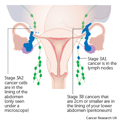 cancer ovarian stage 1)