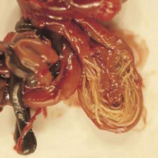 pentru viermisori la adulti condyloma acuminata complications