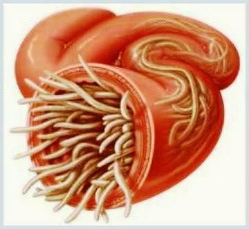schistosomiasis a disease caused by a parasitic worm viermi intestinali lamblia