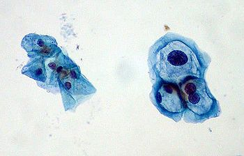 virus del papiloma humano w)