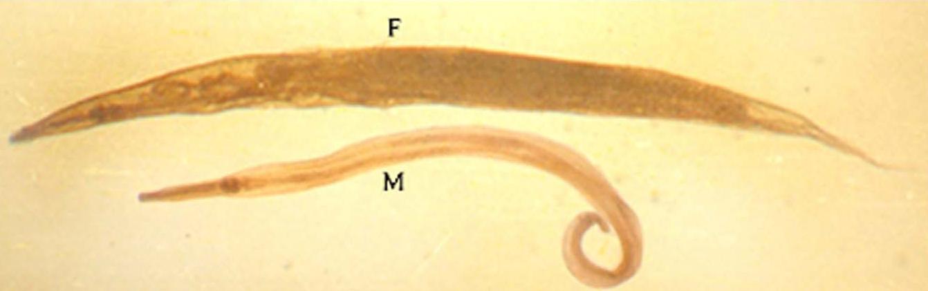 enterobius vermicularis (cacing kremi))
