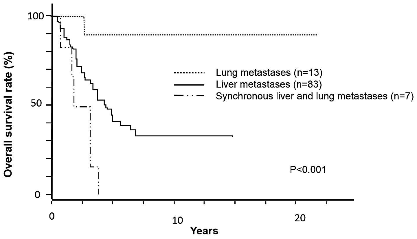 metastatic cancer colon survival rate)