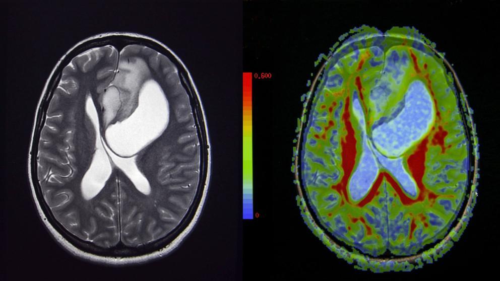 cancer cerebral fases)