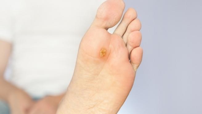 papiloma en el pie es cancer)