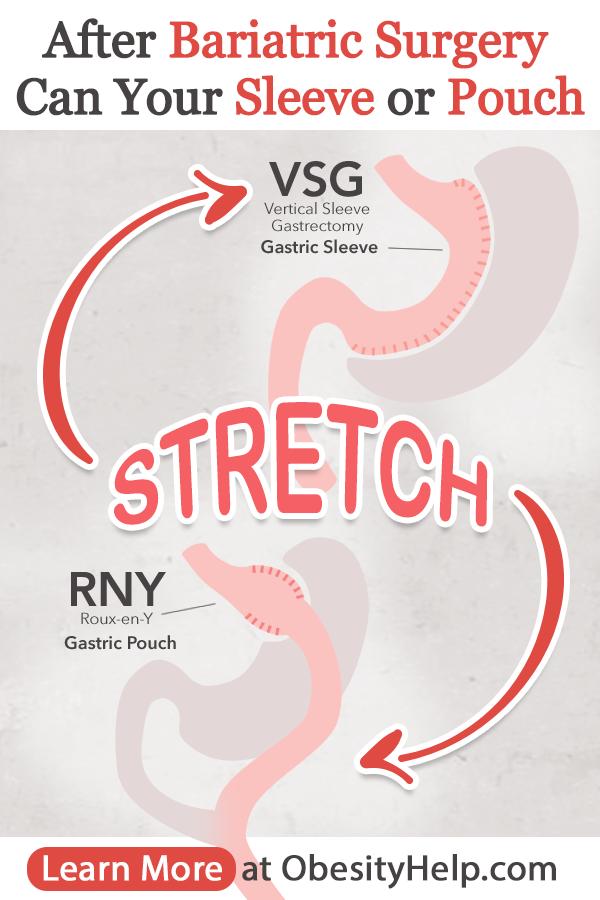 gastric cancer vsg)