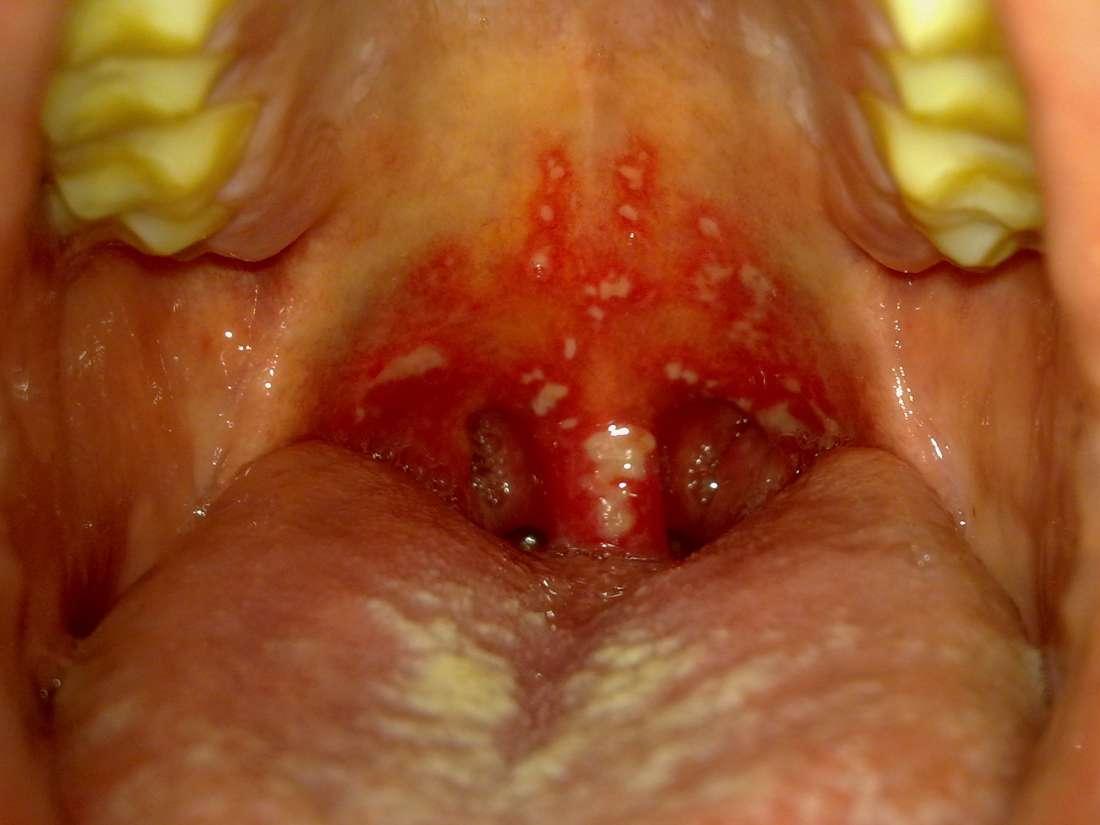 hpv herpes nedir)
