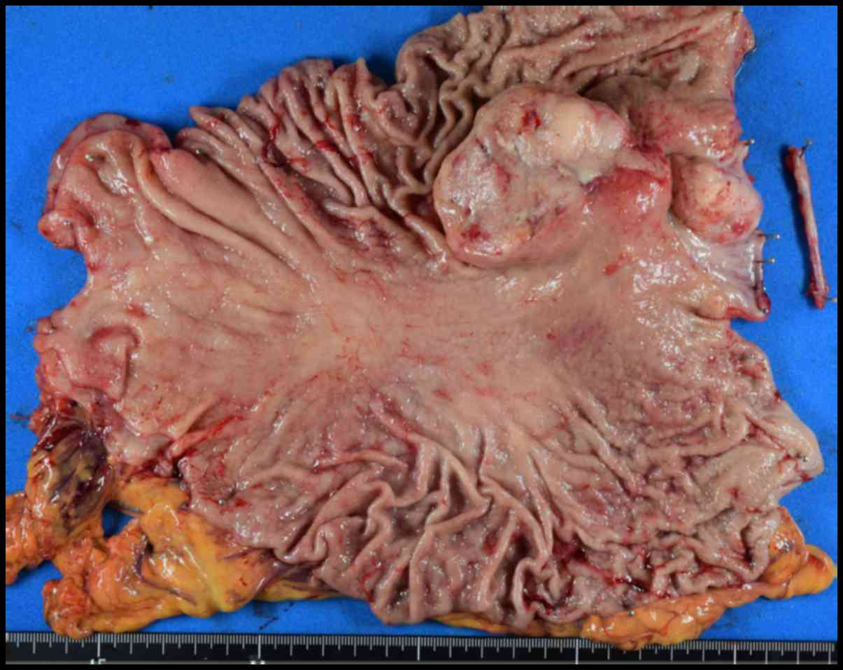 metastatic cancer from gastric)