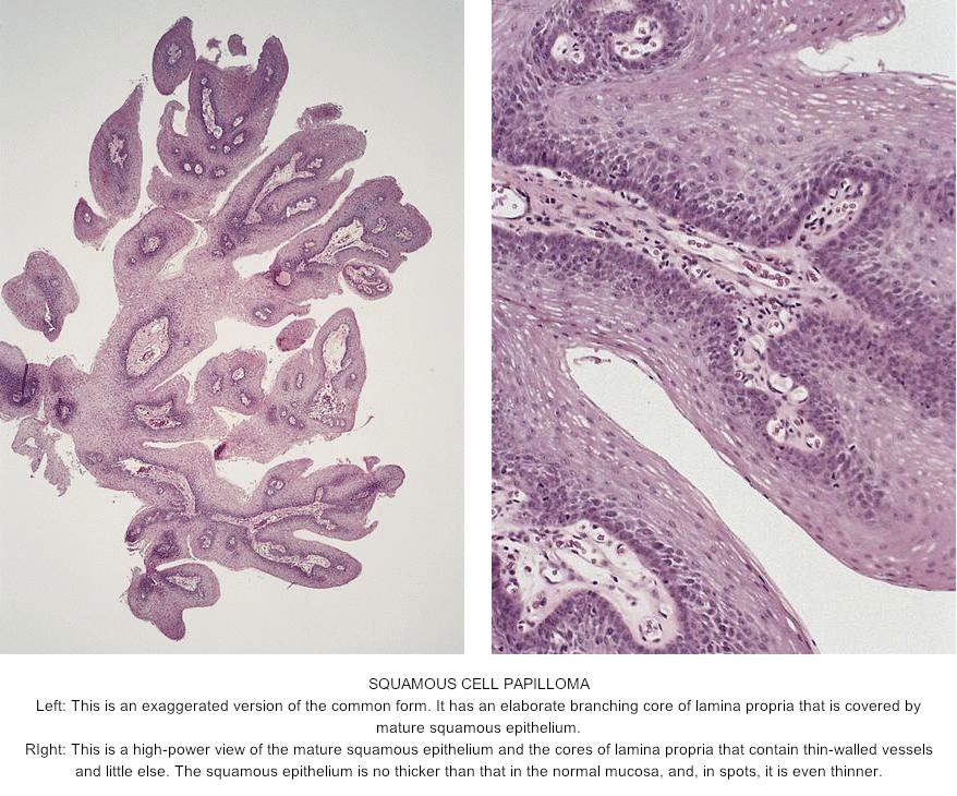 soft palate papilloma pathology)