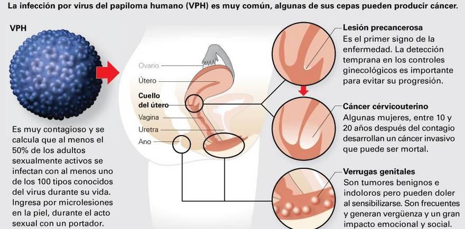uretritis por síntomas de VPH
