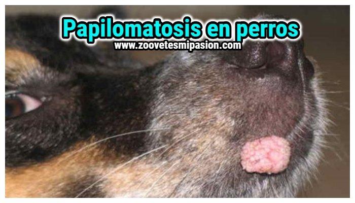 tratamiento para papilomatosis