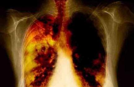 cancer de plamani stadiul 3