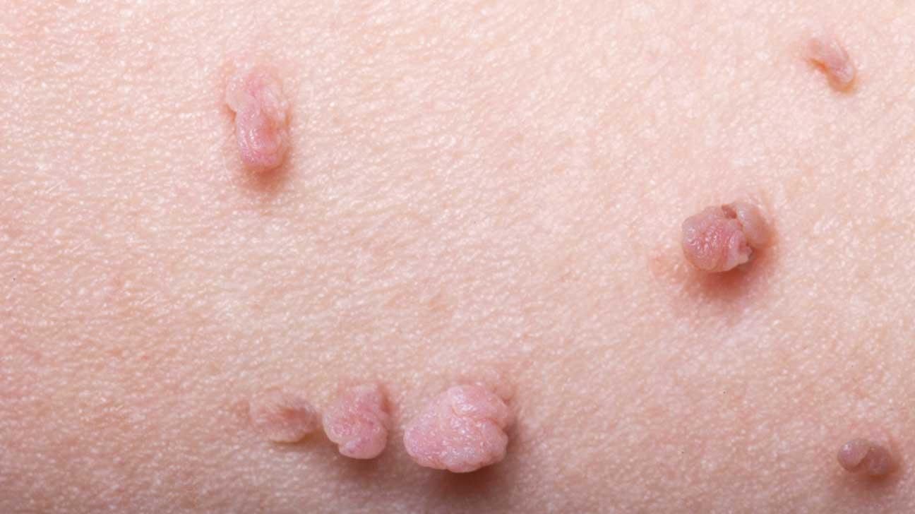 condilomas y virus de papiloma humano es lo mismo colorectal cancer under 40