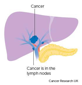 correlation hpv cervical cancer cancerul anaplazic