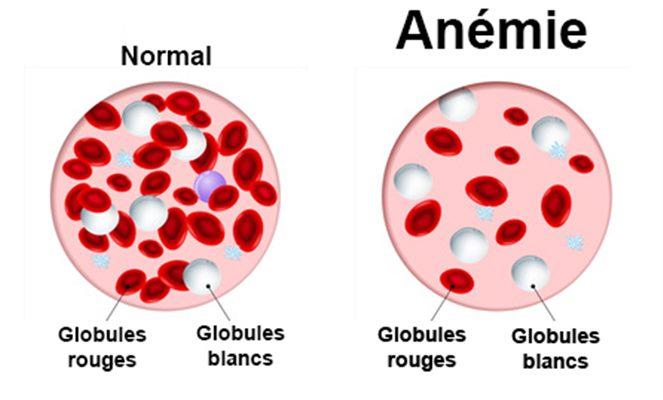 anemie 7 9 hpv virus zdravljenje