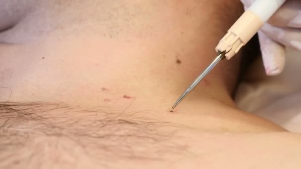 virus papiloma y ano