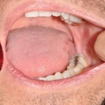 cancer bucal y de garganta)