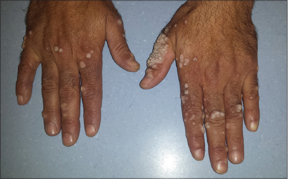 human papillomavirus verrue)