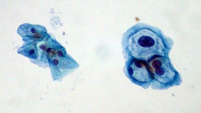 virus del papiloma raspado