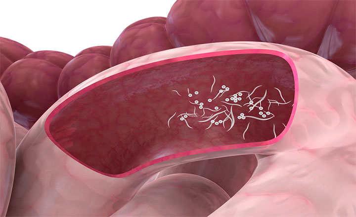 oxiuros tratamiento ajo cancer de pancreas grau 3