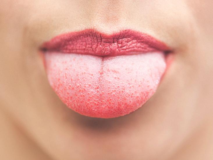 hpv tongue tag)