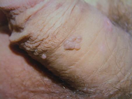 human papilloma kezelese