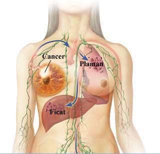 cancer mamar stadiul 2)