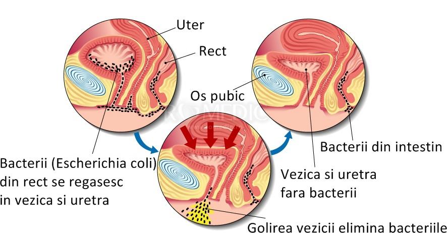 bacterii multe in urina