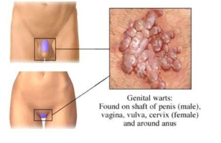 cancer ovarian dupa histerectomie tampone per papilloma virus gola