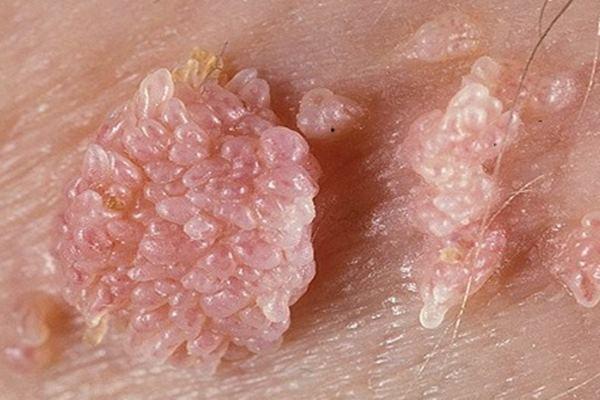 szükséges a helminthiasis megelőzéséhez