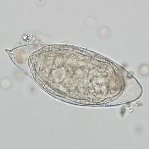 egg types schistosomiasis)