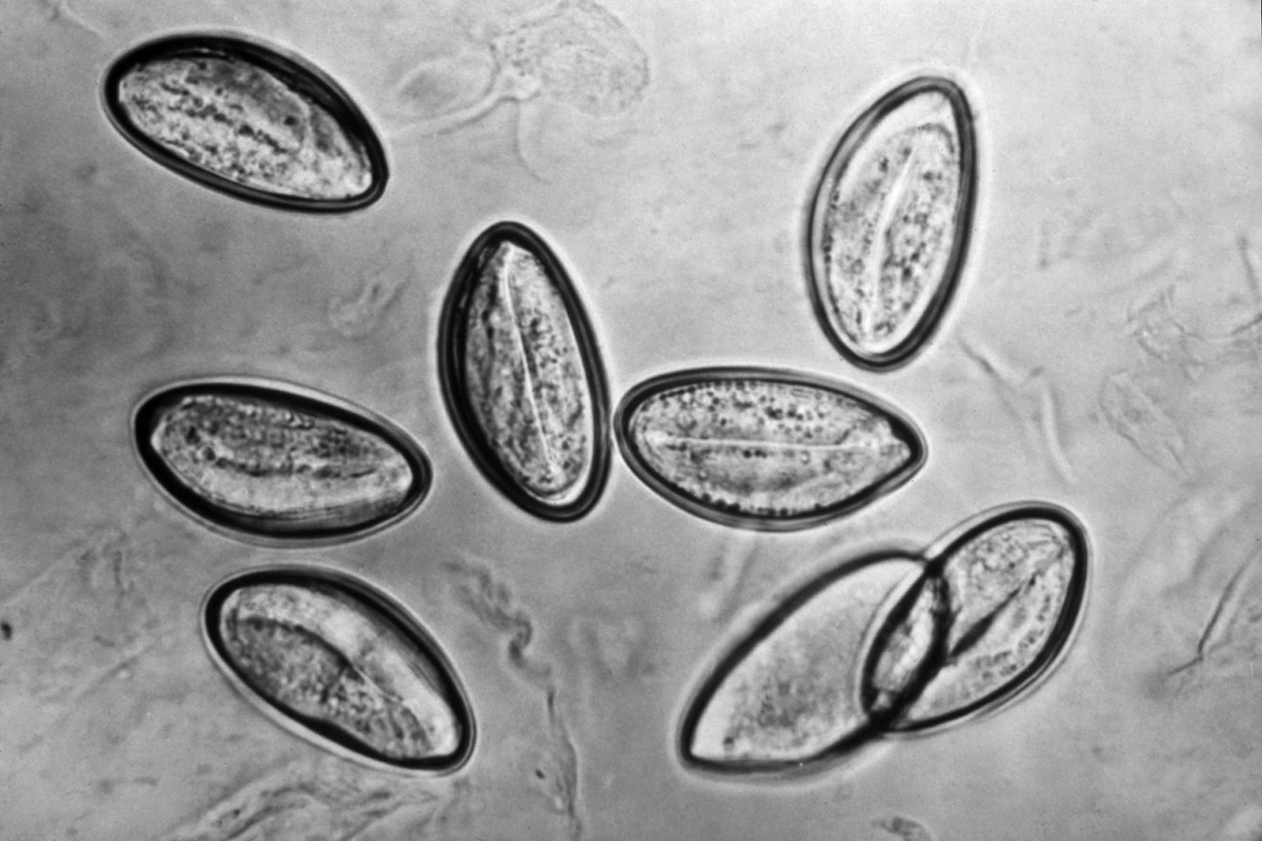 enterobius vermicularis egg size)