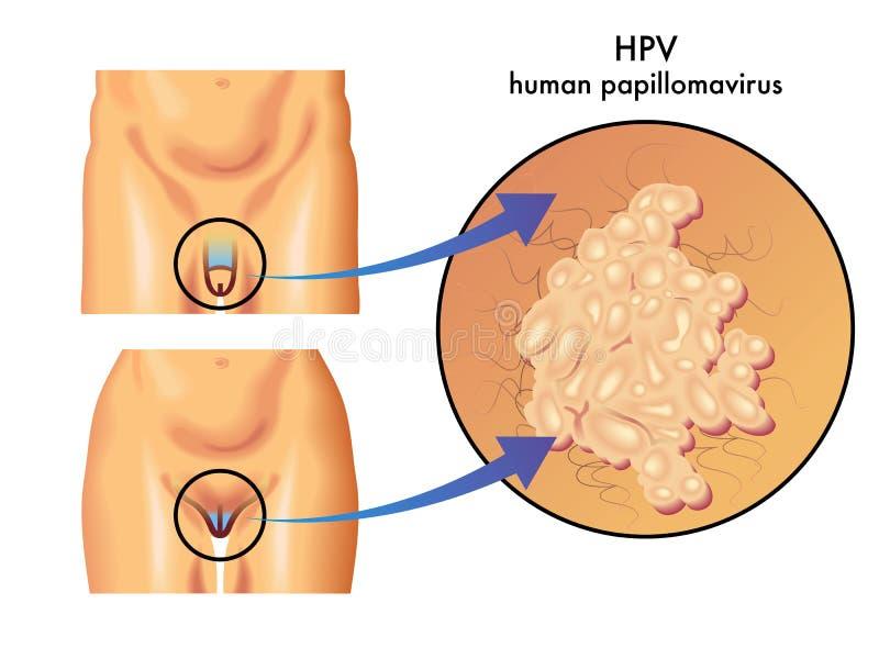 hpv virus zeny