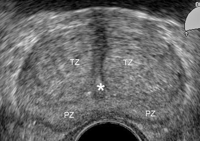 Transrectal cu ultrasunete a uterului fotografiei de prostată