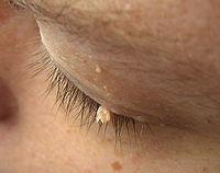 cancer de piele forme detoxifiere prin talpi