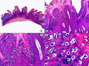 papilomatosis piel histopatologia hpv affecting skin