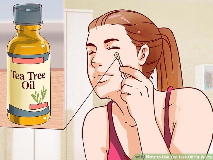 papillomavirus tea tree oil
