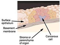 que es cancer in situ)
