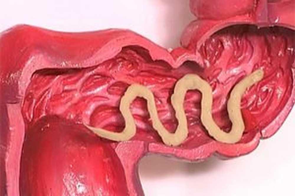 parazit u crijevima covjeka ili zivotinja)