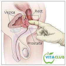 cancerul de prostata tratament hormonal)