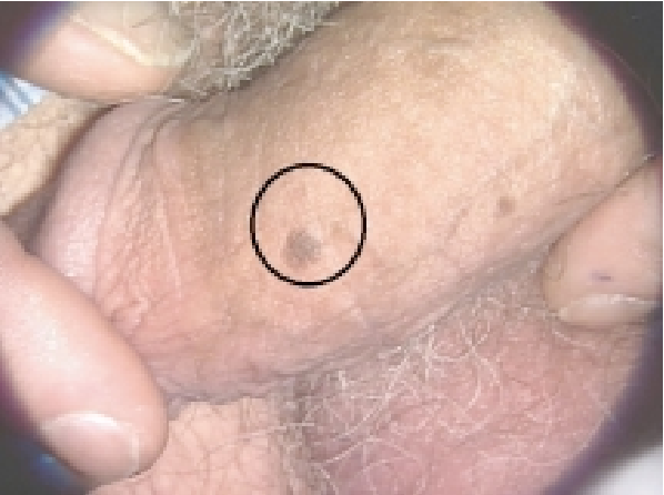hpv virus male