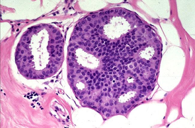 atypical ductal hyperplasia papilloma