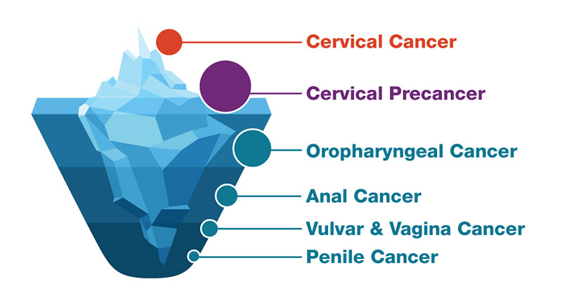 does the cervical cancer vaccine prevent hpv