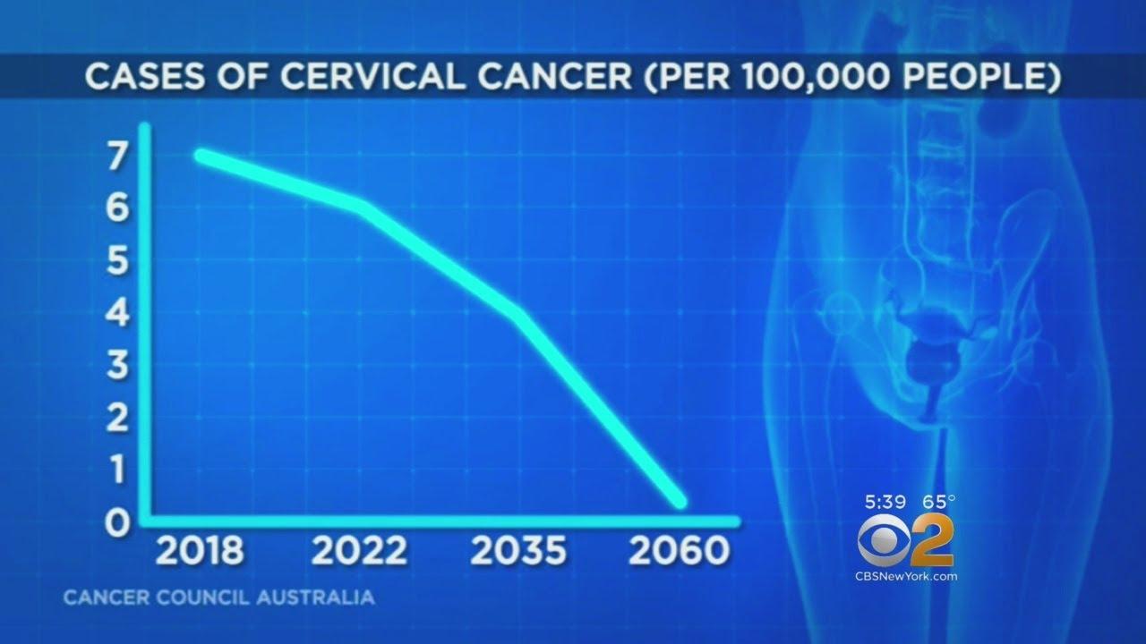 Tipul de cancer care ar putea dispărea până la finalul secolului 21