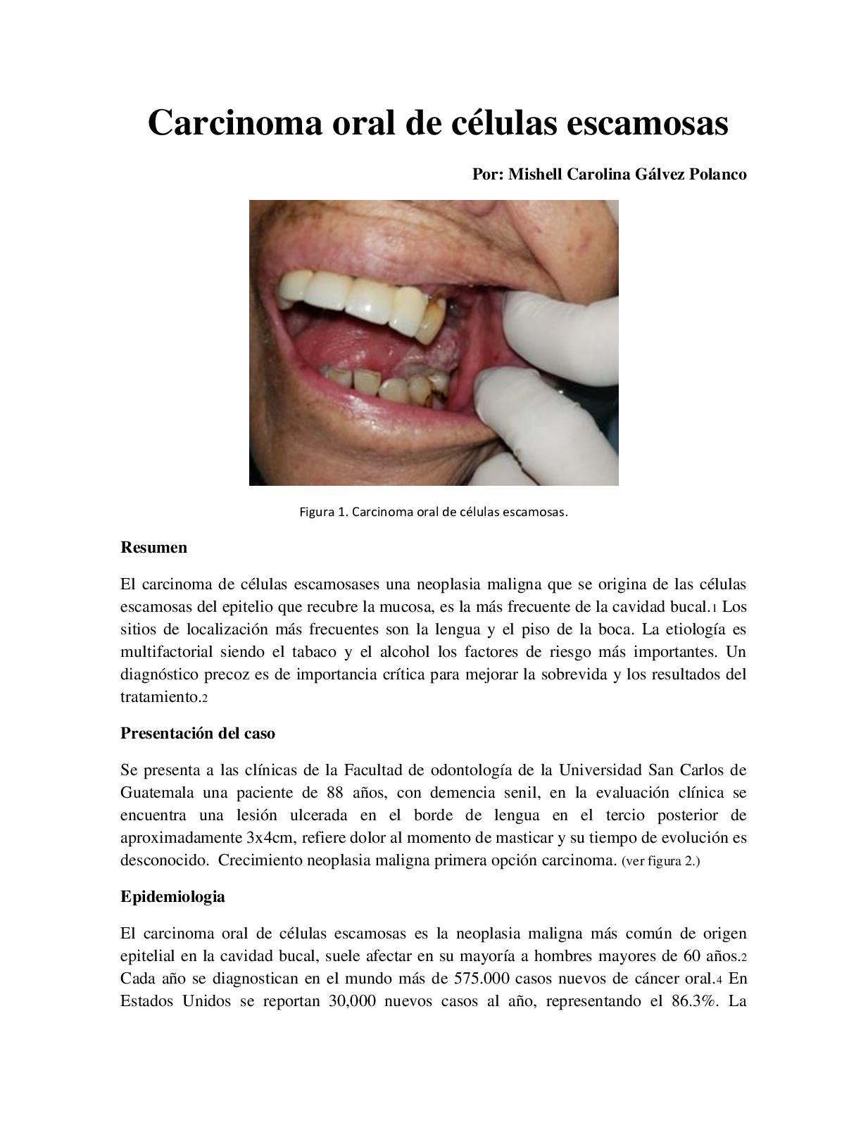 cancer bucal resumen