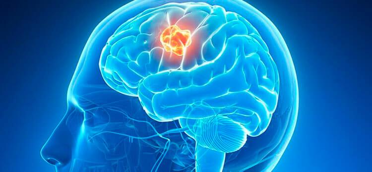 cancer cerebral tratamiento)