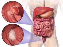 cancer colorectal definition endometrial cancer hipec