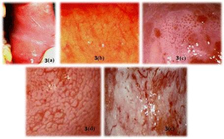 cancer de col uterin invaziv)