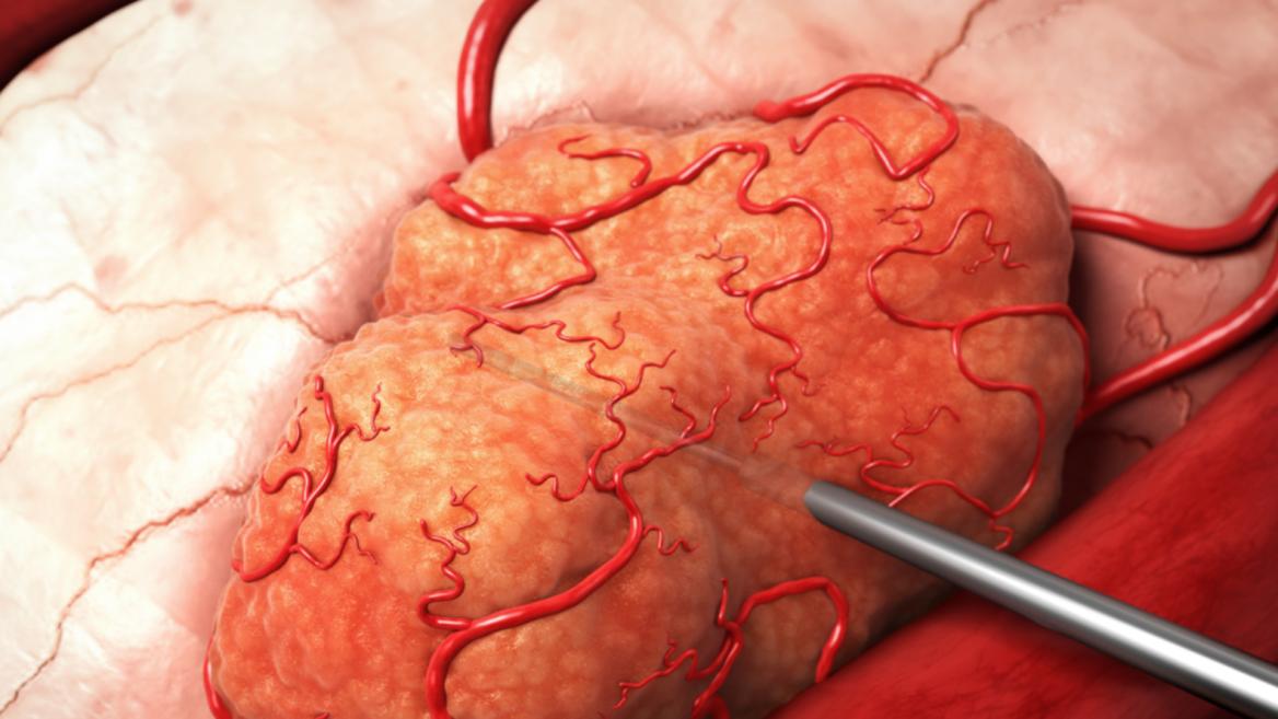 cancer de colon maligno tiene cura