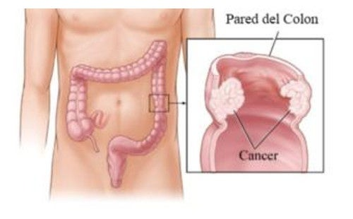 cancer de colon que hacer