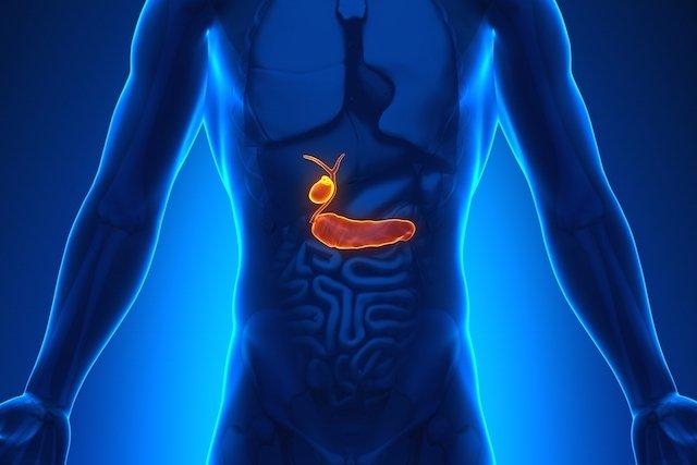 cancer de pancreas grau 3